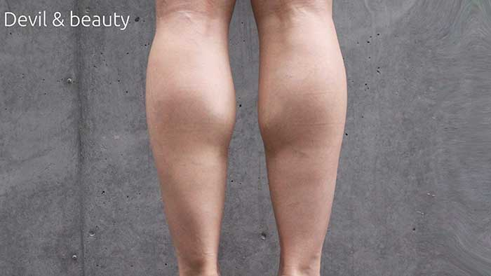 calves-before3 - image