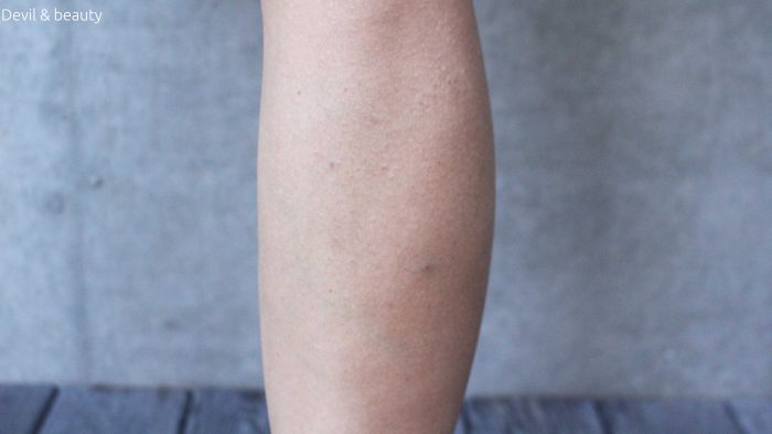 calves-botox-211days-after-e1484558744269 - image