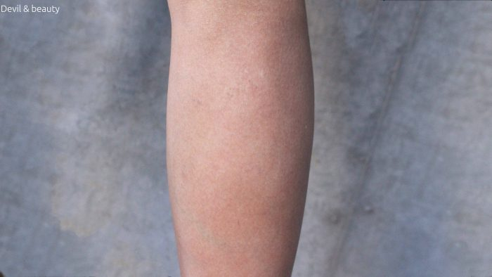 calves-botox-211days-before2-e1484558703209 - image