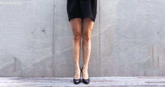 calves-botox-211days1-e1484557824519 - image