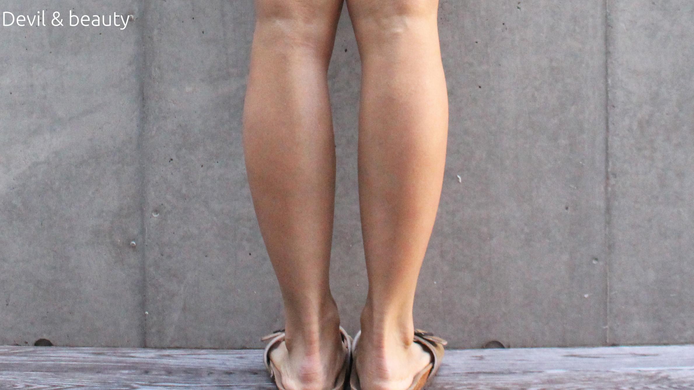 calves-botox-211days2 - image