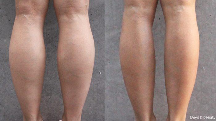 calves-botox-211days4-e1484560722426 - image