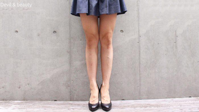 calves-botox-333days-3-e1495100250352 - image