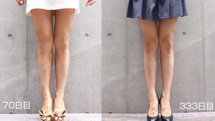 calves-botox-333days-4-e1495101495981 - image