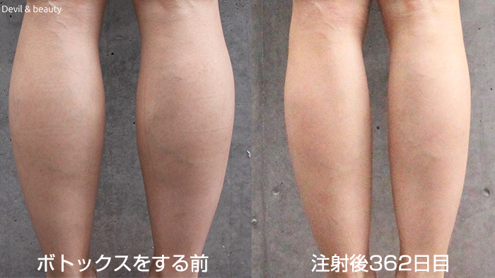 calves-botox-362days5 - image