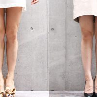 calves-botox-392days-3-200x200 - image