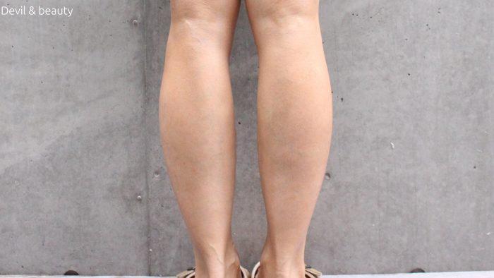 calves-botox-70days2-1-e1482826949375 - image
