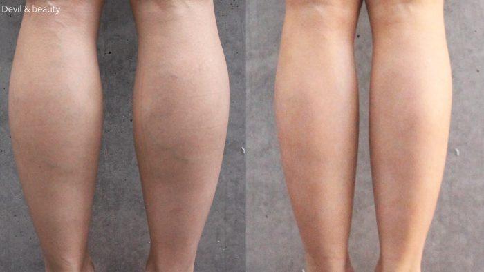 calves-botox-day-241-e1487152417442 - image