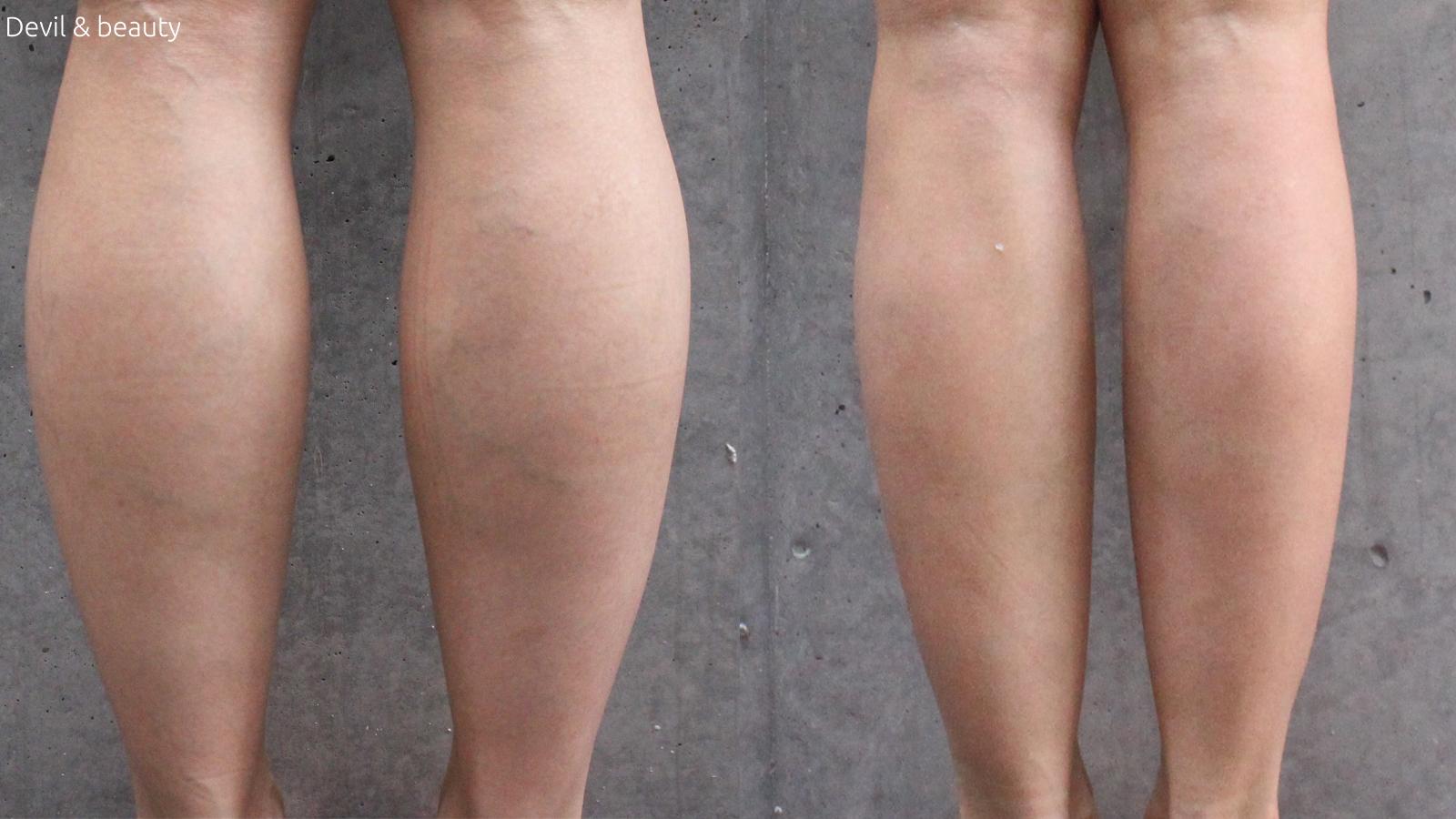 calves-botox-day-252 - image