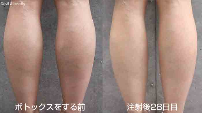 calves-botox-day-28-4 - image