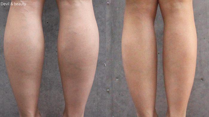 calves-botox-day-284-e1490945843317 - image