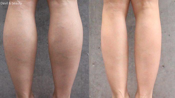 calves-botox-day-333-e1495101856700 - image