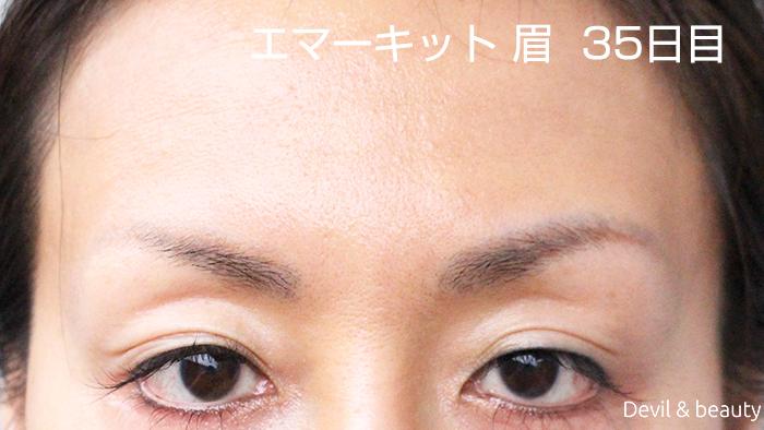 眉毛 ケア プロスト