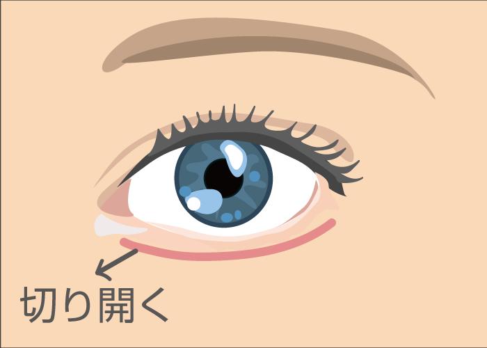 eye1 - image