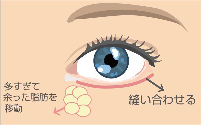 eye2 - image