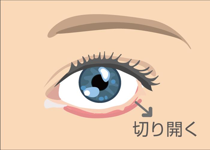 eye5 - image