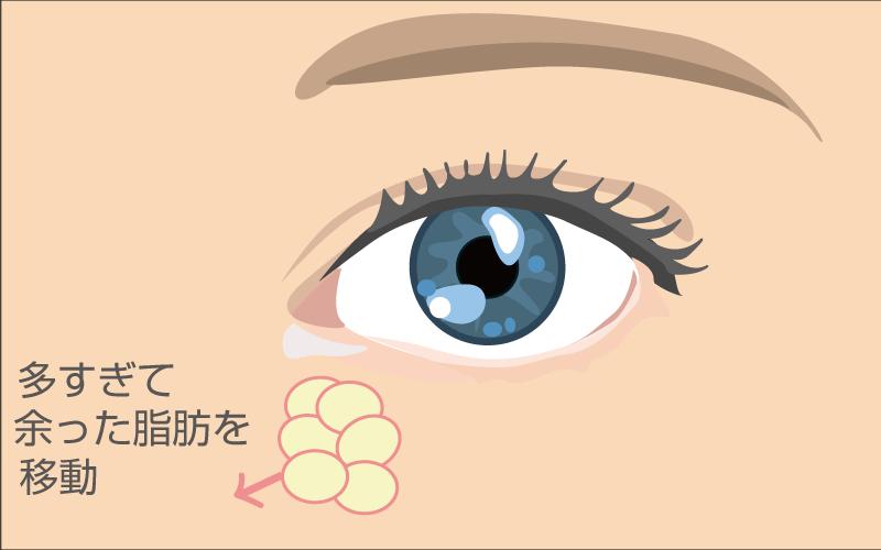 eye6 - image