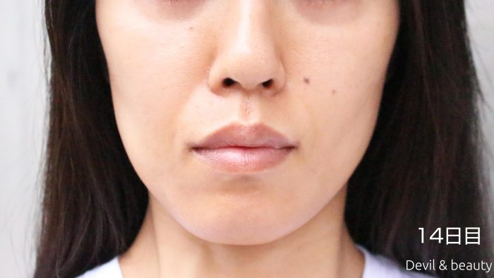 fgf-injection-nasolabial-fold-day14-1-e1495613668236 - image