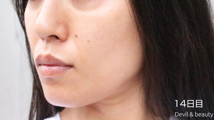 fgf-injection-nasolabial-fold-day14-2-e1495615429443 - image