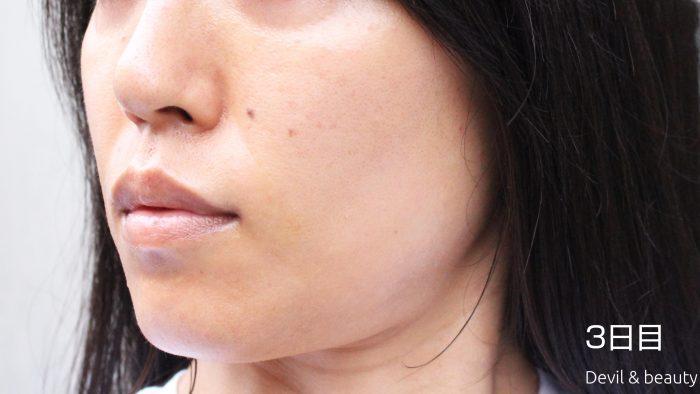 fgf-injection-nasolabial-fold-day3-3-e1495616595932 - image