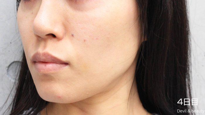 fgf-injection-nasolabial-fold-day4-3-e1495615458986 - image
