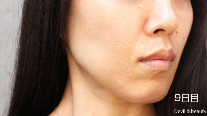 fgf-injection-nasolabial-fold-day9-3-e1495615102984 - image