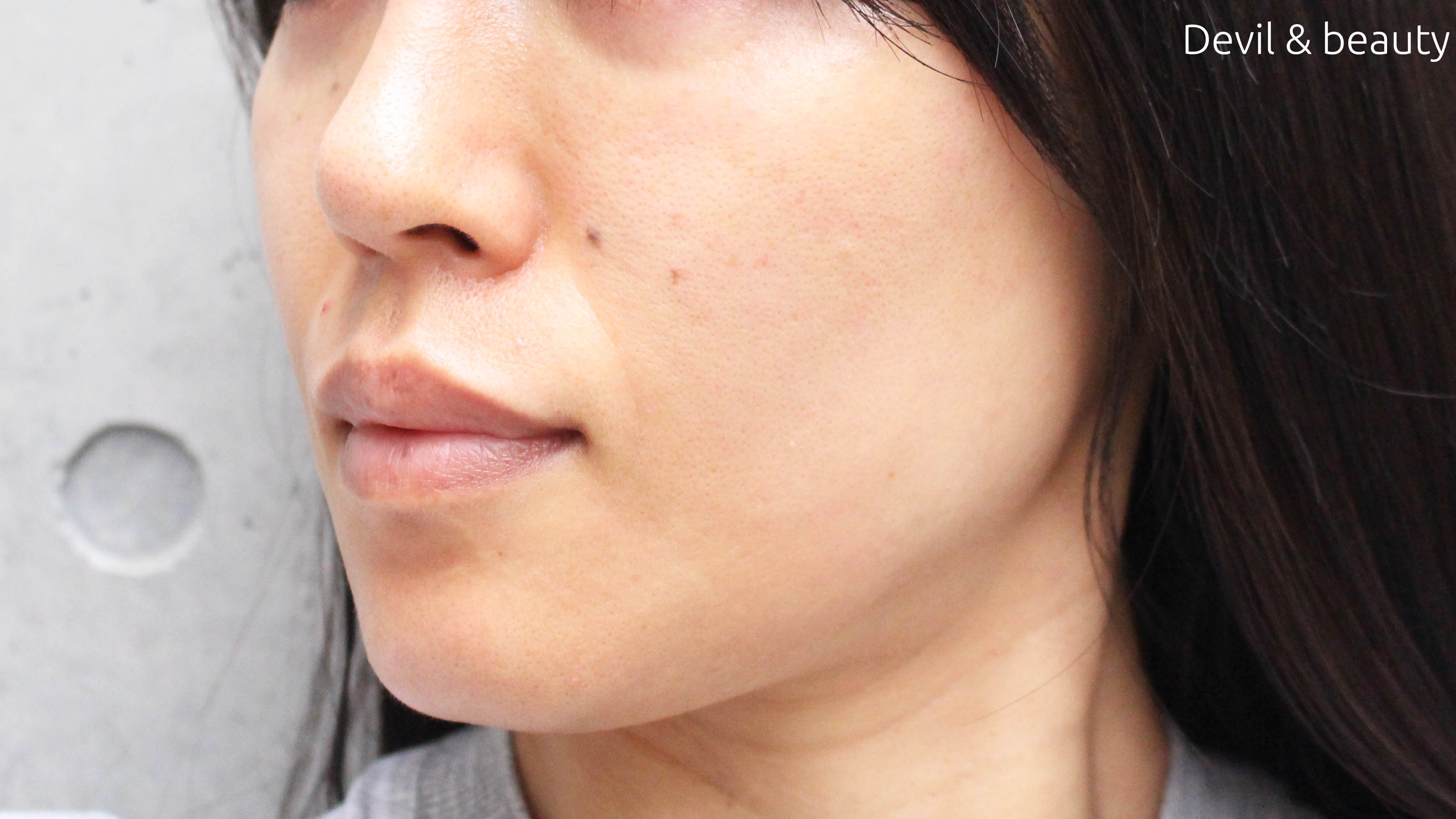 fgf-injection-nasolabial-fold2 - image