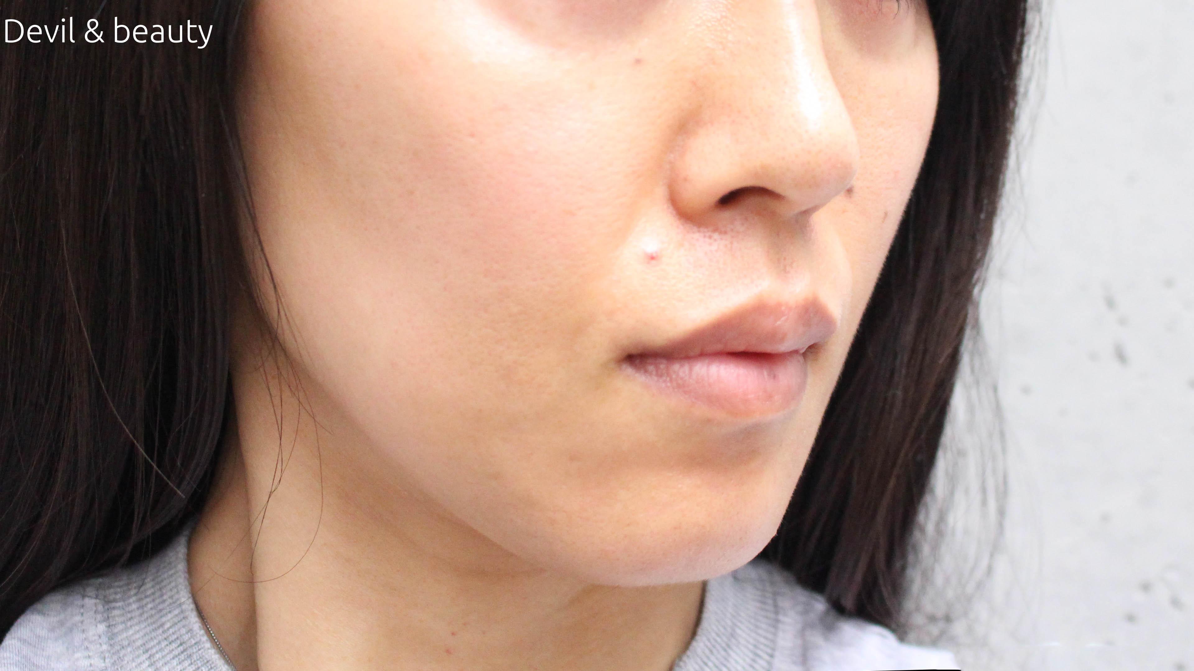 fgf-injection-nasolabial-fold3 - image