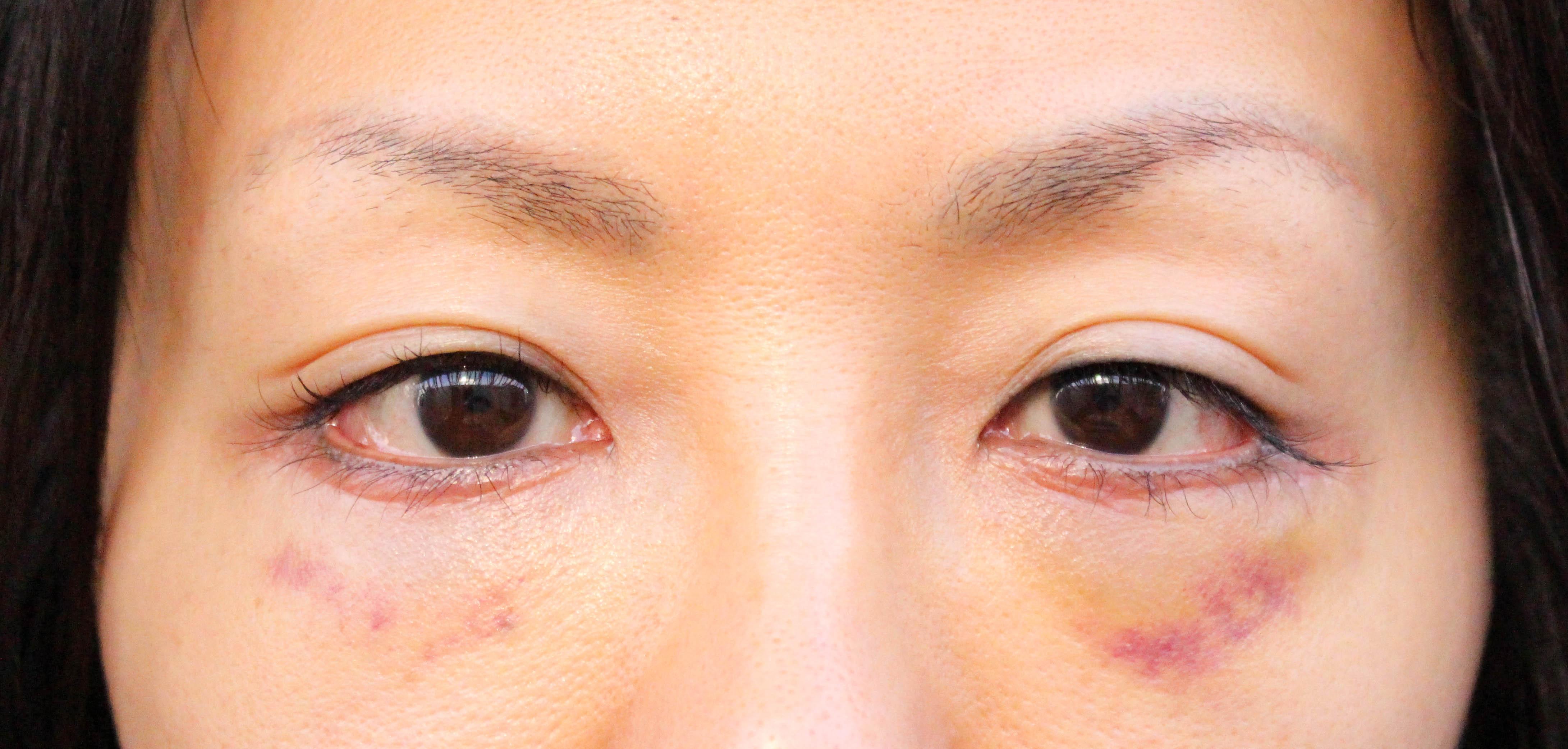 hamura17-1 - image