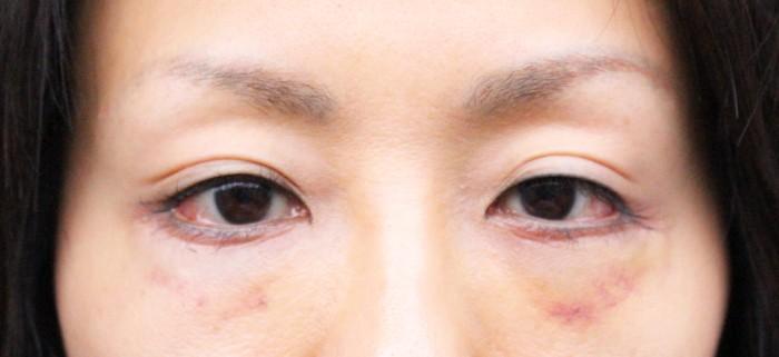 hamura20-4