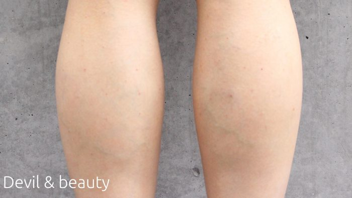 immediately-after-the-calf-of-botox2-e1466349938112 - image