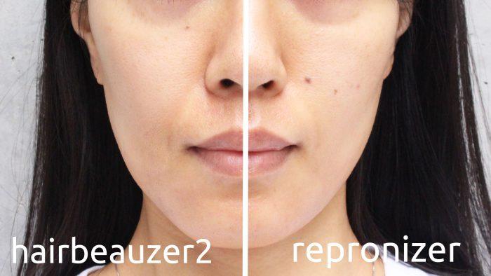 repronizer-vs-hairbeauzer2-2-e1489671405203 - image