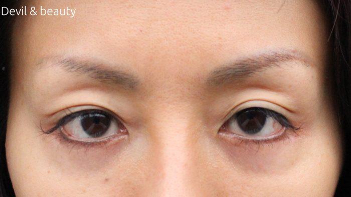 scalp-d-pure-free-eyebrow11-e1478250524506 - image