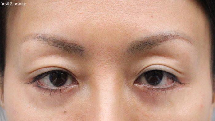 scalp-d-pure-free-eyebrow12-e1478250550100 - image