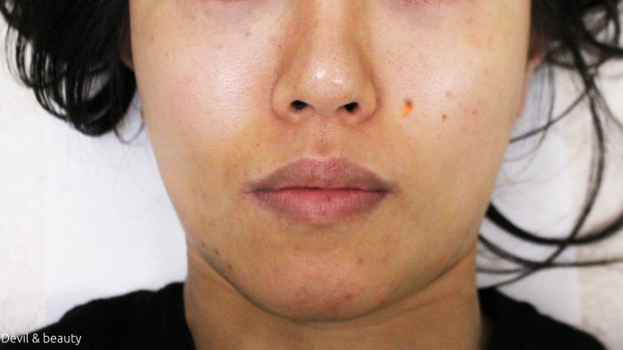 shibuya-cosmetic-surgery-face-depilation11-e1487252182890 - image