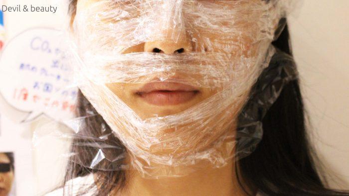 shonan-cosmetic-surgery-omotesandou-fraxel-co2-laser7-e1473649569941 - image