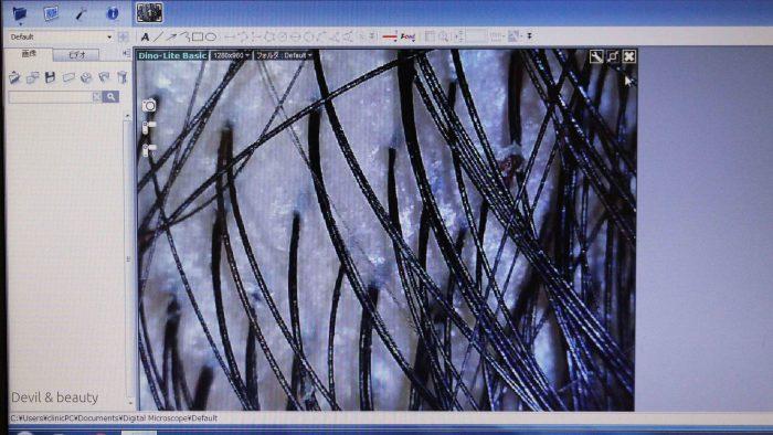 tokyo-beauty-clinic12-e1489590696706 - image