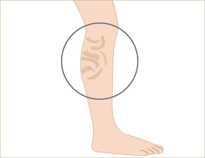 varicose-vein1 - image