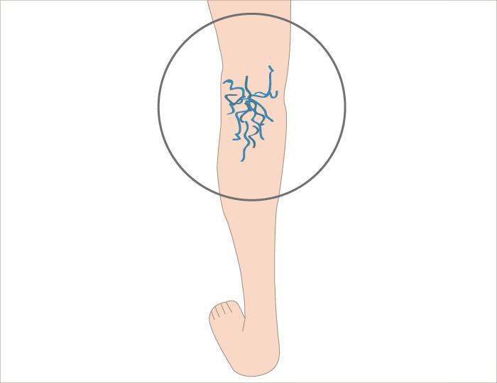 varicose-vein3 - image