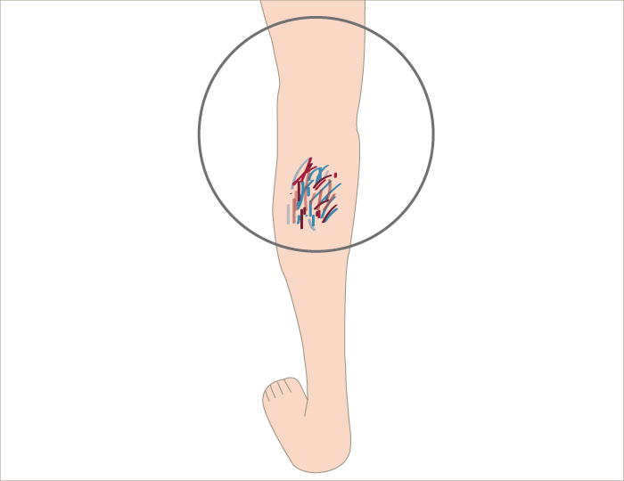 varicose-vein4 - image