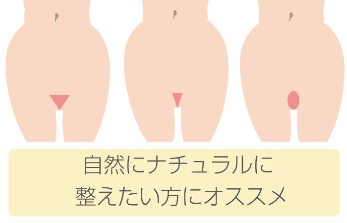 vio3 - image