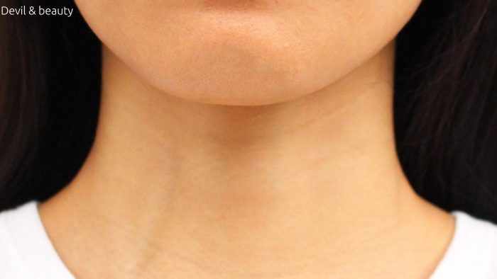 wrinkles-of-neck-e1475815830560 - image